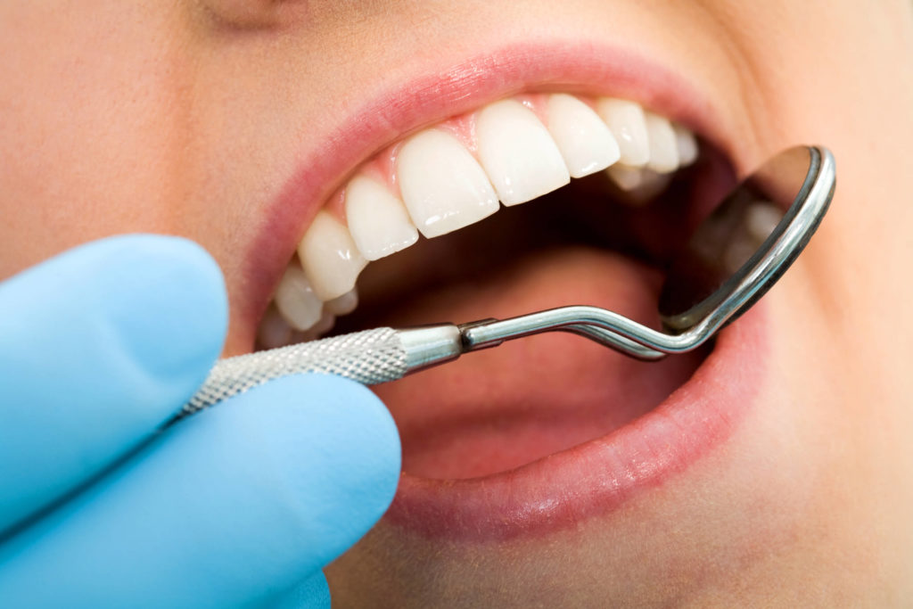Geelong teeth whitening specialists